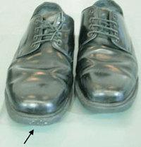 Painfulshoes_1